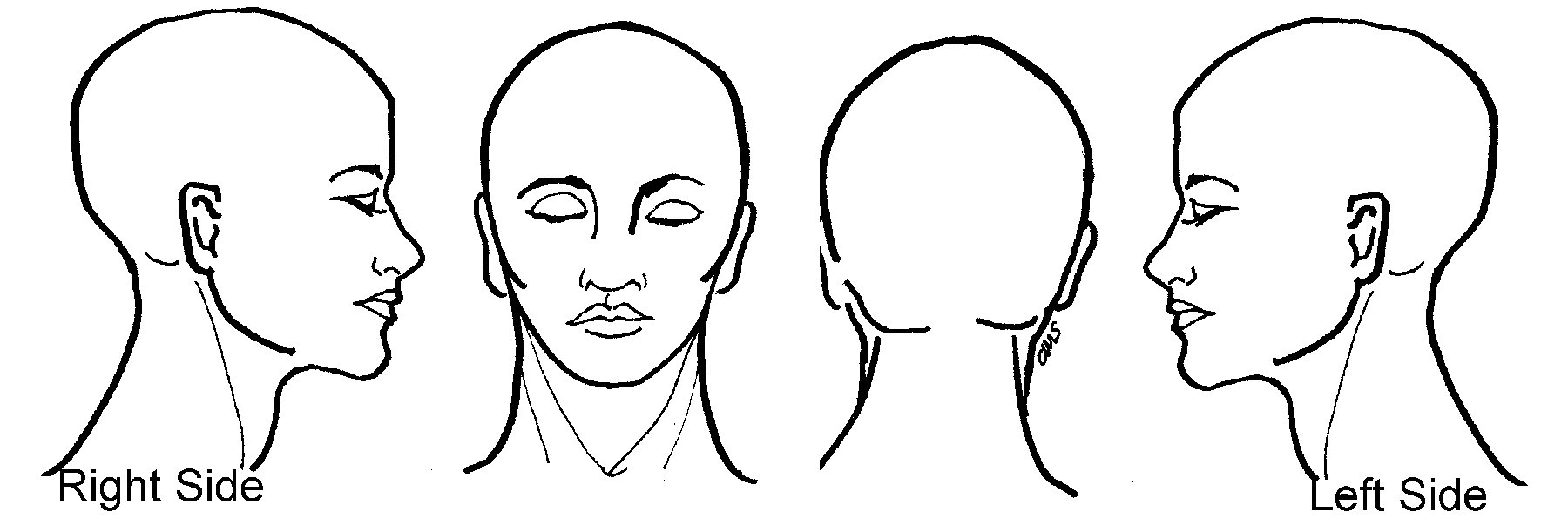 Head Pain Template